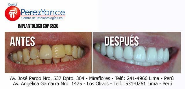 Rehabilitación oral en Lima Perú el Doctor Jose Perez Yance especialista en rehabilitación oral e implantes dentales les presenta sus casos de rehabilitación oral en Lima