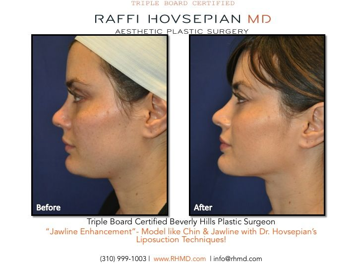 """Dr Raffi Hovsepian's Model Like Jawline & Neck Enhancement Technique using advanced techniques in liposuction to achieve a more youthful modelesque appearance. We call it """"The Beverly Hills Model Makeover."""" www.RHMD.com / (310) 999-1003. #Drraffihovsepian #plasticsurgery #model #liposuction #jawline #rhmd #beverlyhills #90210 #LA #aesthetic #happypatient #beverlyhillsplasticsurgery #drhovsepian #raffihovsepian #beforeandafter #rhmdaesthetics"""