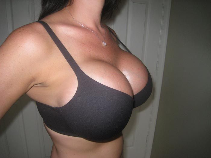 600 cc breast implant