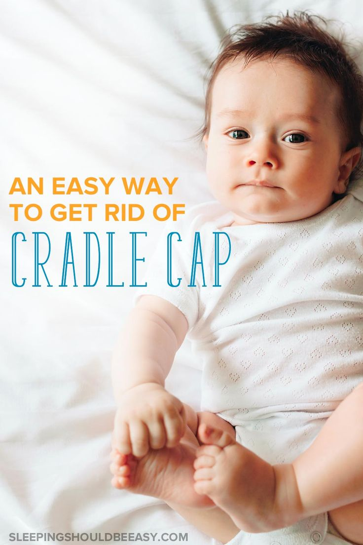 Does your baby have scaly, dried patches on the scalp? Finding remedies doesn't have to be difficult! Learn how to get rid of cradle cap from his head using an at-home, easy treatment in as little as days. A must-read for any mom dealing with cradle cap!