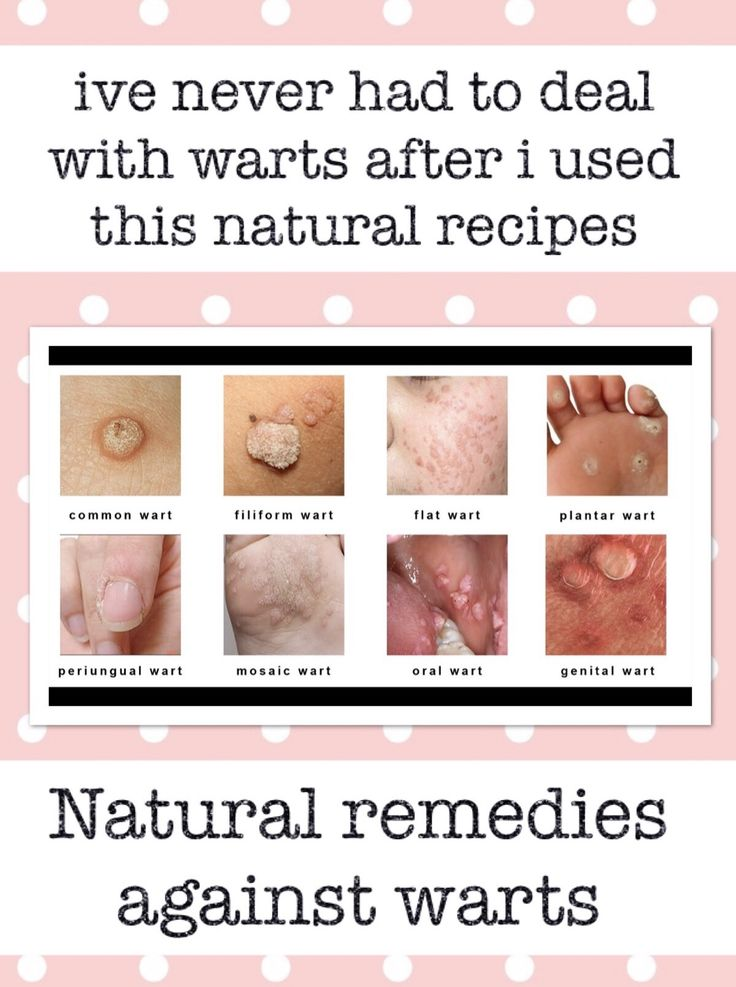 13 Effective natural remedies against warts
