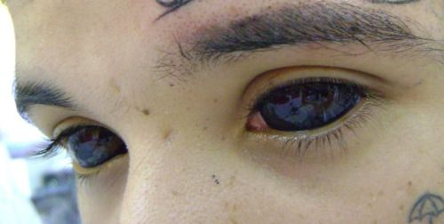 Sclera tattooing More on my Blogspot