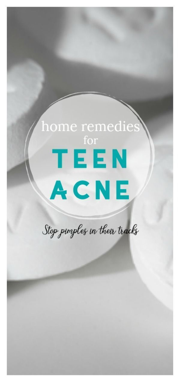 5 Home Remedies für Teen Akne | Natürliche Behandlung für fettige Haut und Pickel | TodaysCreativeLife.com #bestacnehomeremedies #WrinklesRemedies