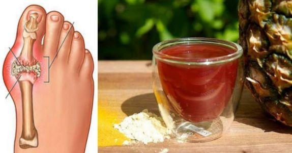 """Este remedio casero es ideal para combatir la artritis, y la acumulación de ácido úrico que trae como consecuencia la temible """"gota"""".Los a"""