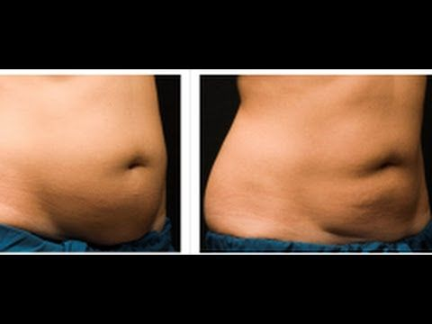 Coolsculpting | Non Surgical Fat Reduction with Coolsculpting | Melbourne, Australia - YouTube