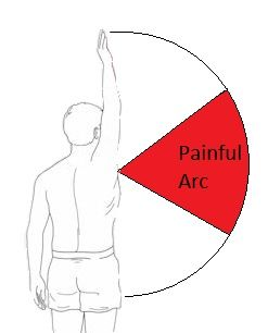 Shoulder bursitis can cause a painful arc. This is when pain gradually increases as the arm lifts up but once it has reached a certain point further movement gets less painful