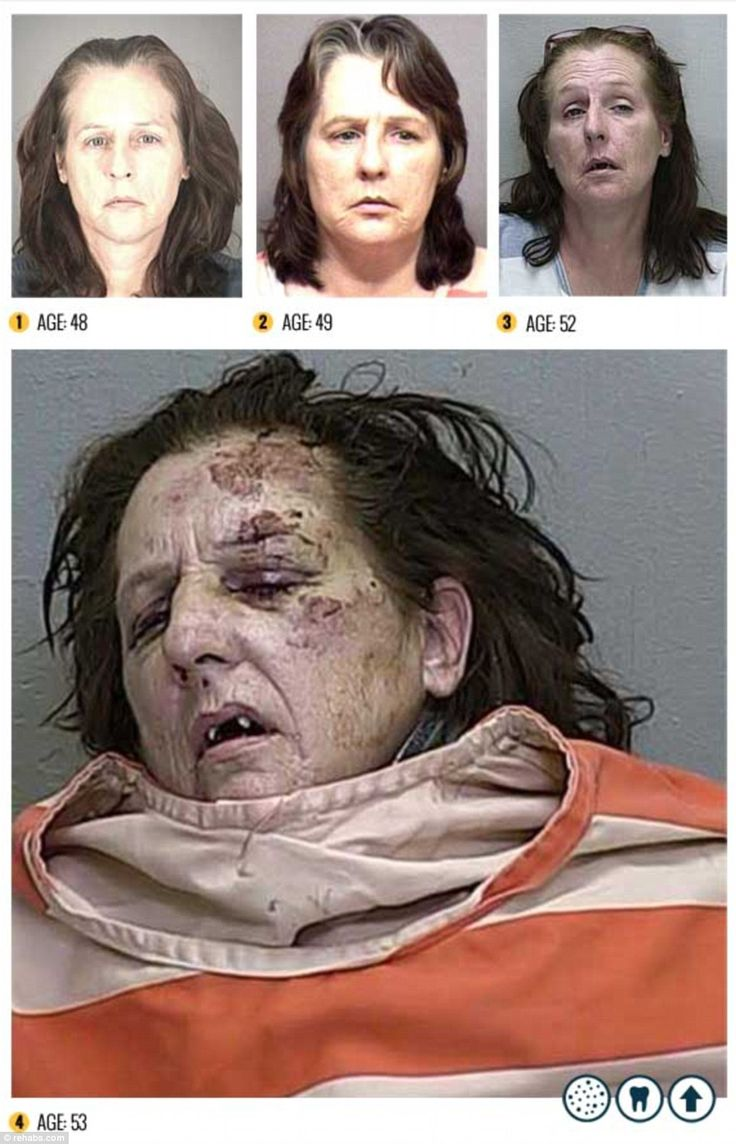 Horrifying what Meth does to people. It's the REAL Zombie-making drug. Unbelievably heartbreaking for these people.