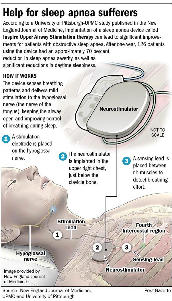 New Sleep Apnea Devices - See more sleep apnea tips at StopSnoringPlease.com