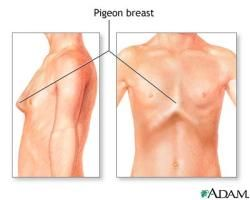 Bowed Chest & Pigeon Breasts: A bowed chest is also called pectus carinatum. The condition causes the sternum to protrude, with a narrow depression along the sides of the chest. This gives the chest a bowed-out, bird-like appearance (hence the term pigeon breast). Pectus carinatum is usually only a cosmetic defect but can be associated with other genetic diseases. From Penn Medicine.
