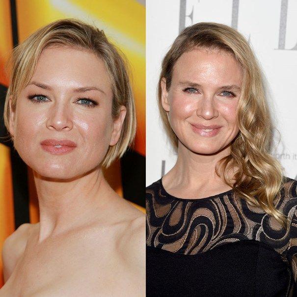 Celebrities With Bad Plastic Surgery Bad Plastic