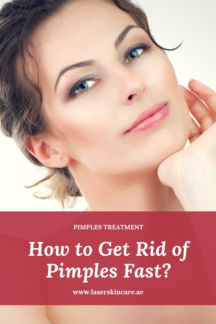 How To Get Rid Of Pimples Instantly How To Get Rid Of Pimples Fast Skin Care Clinic Uae How To Get Rid Of Pimples Back Acne Treatment Pimples