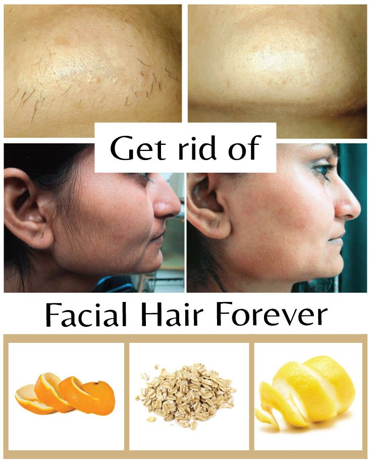 Get rid of facial hair forever - Wiki Remedies