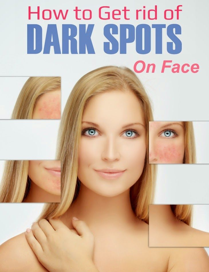 How to get rid of dark spots on face tips park rosacea