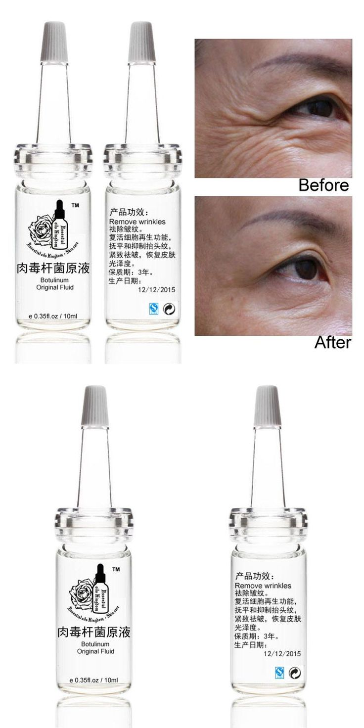 [Visit to Buy] Hot Sale Clostridium Botulinum Original Fluid Vegneotox Anti Aging Wrinkles Finelines Firming Skin Serum Free Shipping 10ml*2pcs #Advertisement