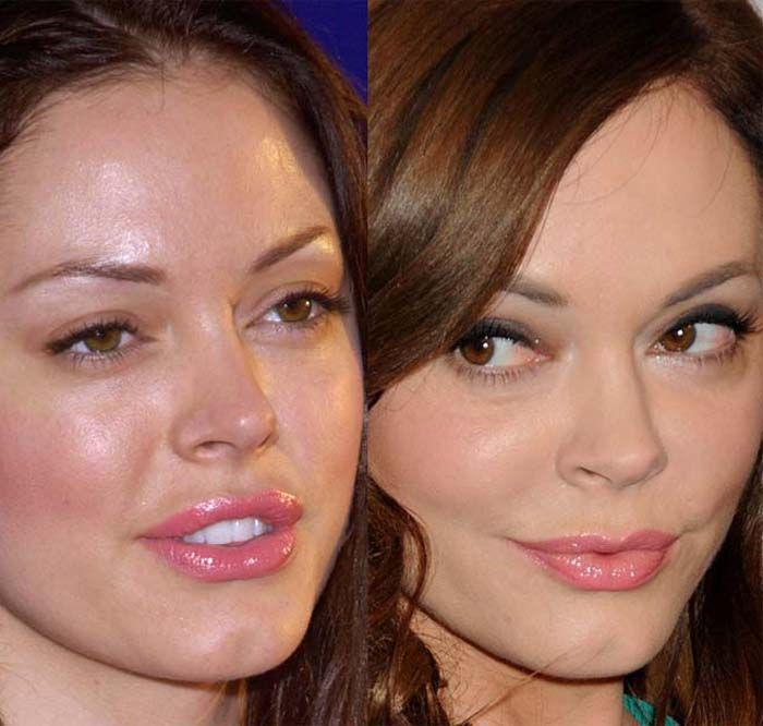 Rose Mcgowan has done plastic surgery on face