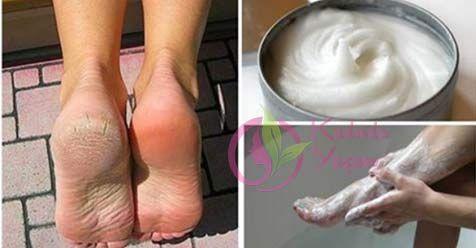 Aspirin ve limonla topuk çatlağı tedavisi nasıl yapılır:Bu yapılışı oldukça kolay olan aspirin limon karışımı ile topuk çatlakları yok olacak, ayaklarınız bebek gibi yumuşak olacak. Ayak nasırları, ayak tahrişleri gibi sorunlar kaybolacak. yumuşak sağlıklı ayaklar için yapmanız gereken oldukça basit. Ayak mantarı ve ayaklarda oluşan kaşıntı gibi sorunlara da faydalı olan karışım için gerekli malzemeler: …