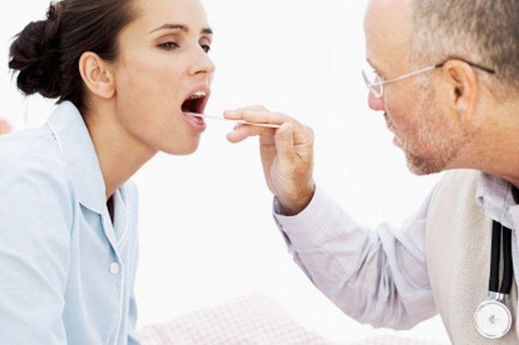 Complicaciones de la faringitis estreptocócica en adultos | Muy Fitness