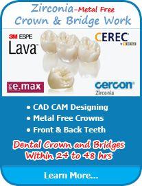 Dental #Crown and #Bridge in Delhi, India