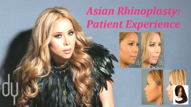 Asian Rhinoplasty Recovery Experience