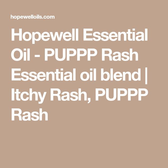 Hopewell Essential Oil - PUPPP Rash Essential oil blend | Itchy Rash, PUPPP Rash