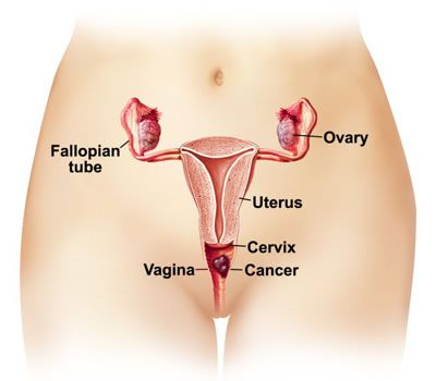 Most Effective Ways to Treat Pelvic Cancer