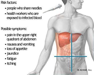 Hepatitis C - Symptoms, Diagnosis, Treatment of Hepatitis C - NY Times Health Information