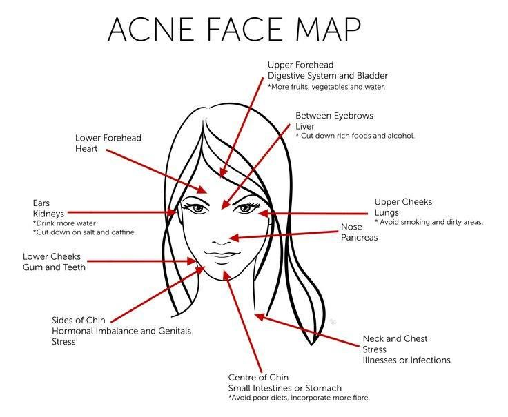 Acne Face Map for the Body