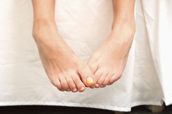 Alles rund um gelbe Fußnägel