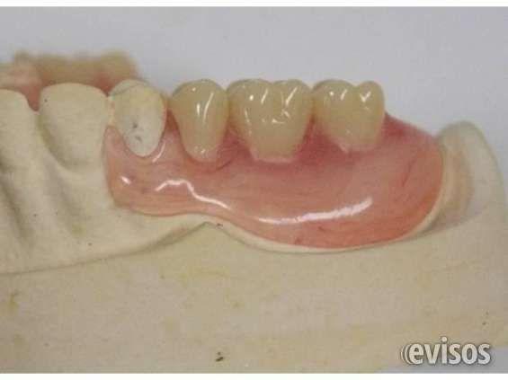 Prótesis dentales removibles Advertisement Descripción Confección de prótesis dent .. http://san-miguel.evisos.cl/protesis-dentales-removibles-id-614500