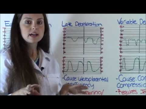 Early, Variable, and Late Decelerations | OB Fetal Heart Tone Monitoring Decelerations