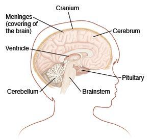 27 best Brain Cancer images on Pinterest   Brain tumor, Cancer and ...