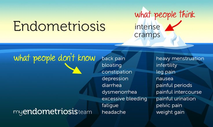 Endometriosis: What People Don't Know (Infographic)   MyEndometriosisTeam