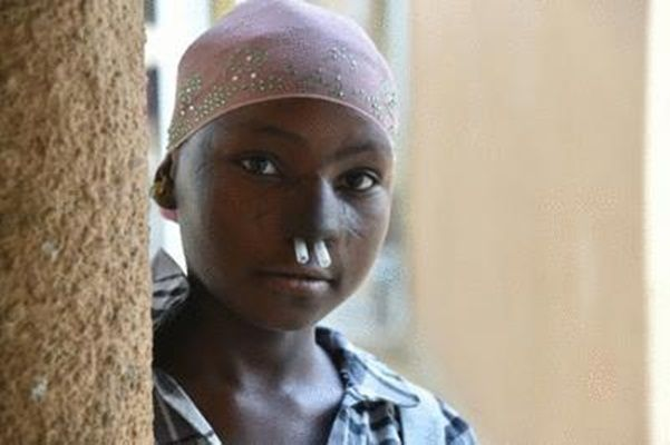 A young girl operated after suffering noma disease, poses for a photo at the health centre of the NGO Sentinelles, in Zinder, southern Niger/AFP photo