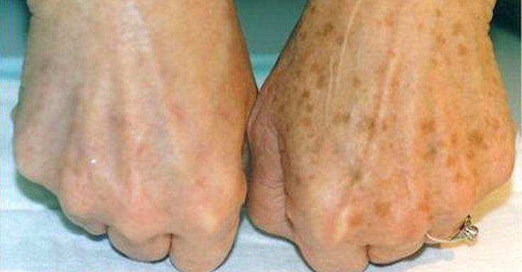 Ouderdomsvlekken of levervlekken zijn egale, bruine of zwarte vlakken die voorkomen op de handen, schouders, gezicht en andere delen van het lichaam die aan de zon worden blootgesteld. Hoewel deze vlekken helemaal niet schadelijk zijn, worden ze vaak wel als zeer storend ervaren. Je zou misschien denken dat het onmogelijk is, maar ze kunnen zeer eenvoudig verwijderd worden zonder een bezoekje aan de arts te moeten brengen.