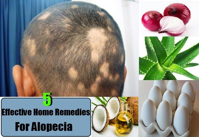 5 Effective Home Remedies For Alopecia