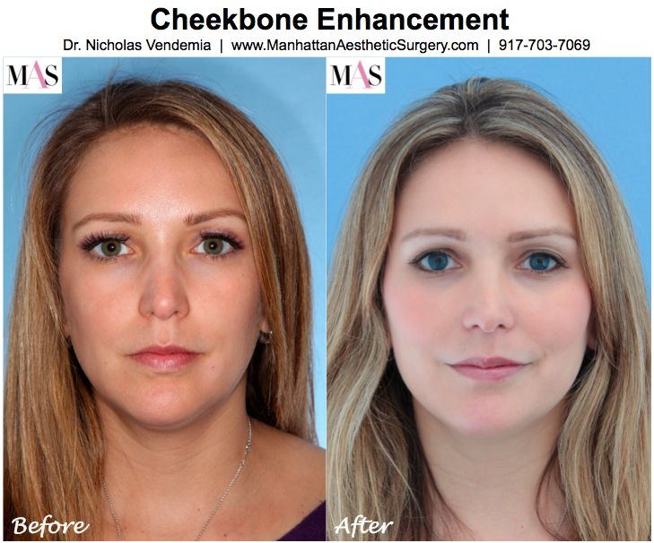 Cheek Implants Before And After | ... augmentation, fillers for cheeks, Juvederm, Restylane, Radiesse
