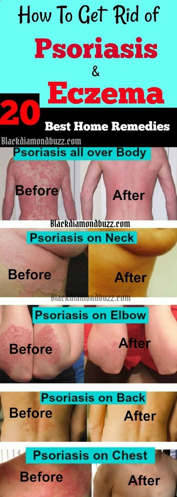 how to get rid of eczema fast