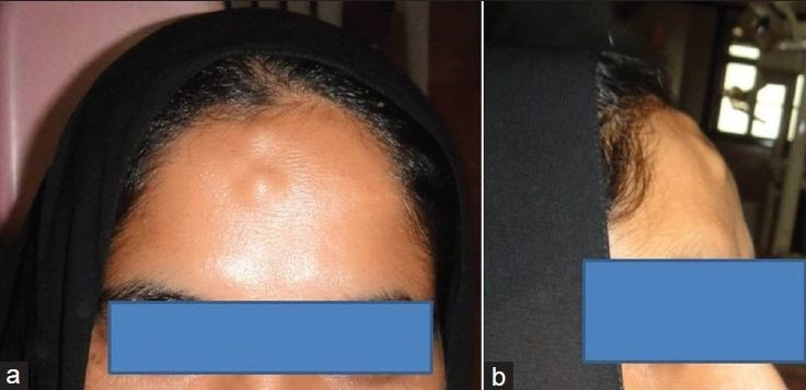 Osteoma = flat bones of face, 40 yo M, bossellated, assoc w/Gardner syndrome
