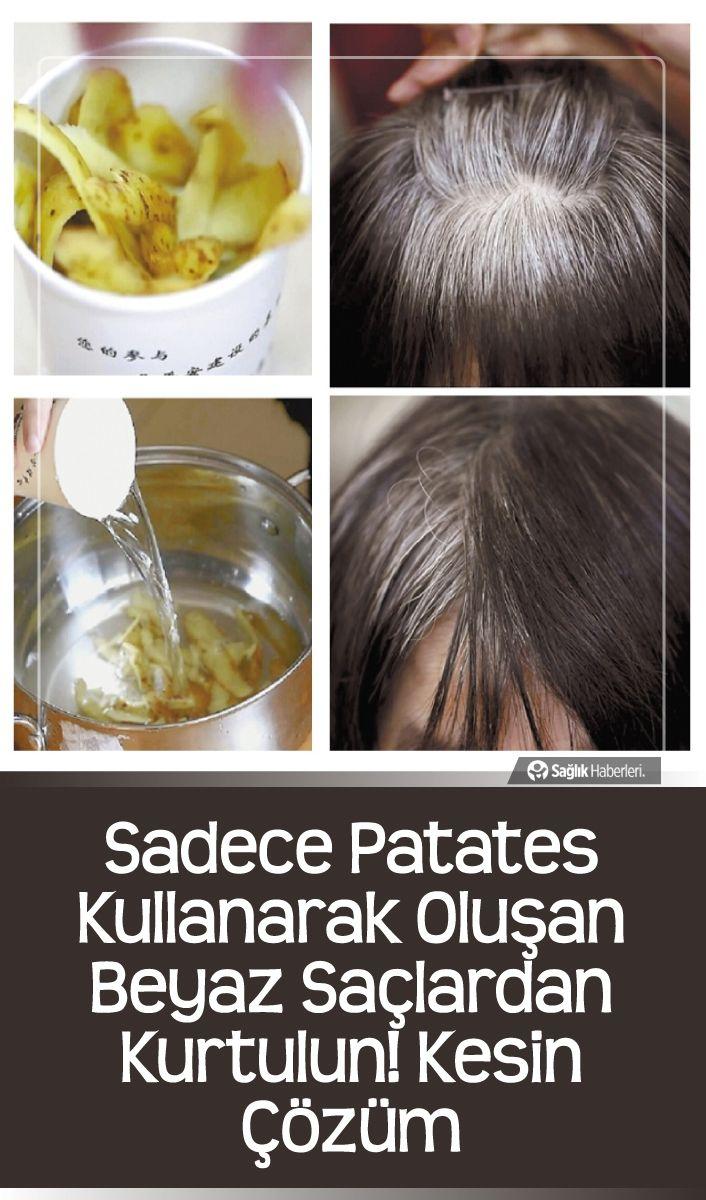 Sadece Patates Kullanarak Olusan Beyaz Saclardan Kurtulun Kesin