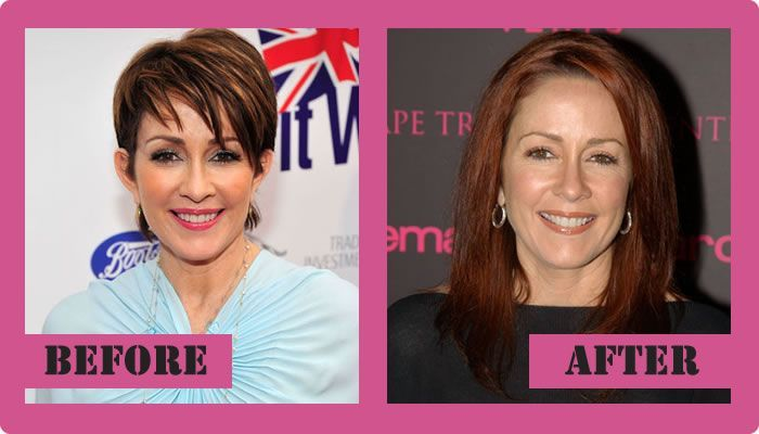Patricia Heaton Plastic Surgery Before And After Patricia Heaton Plastic Surgery #PatriciaHeatonPlasticSurgery #PatriciaHeaton #gossipmagazines