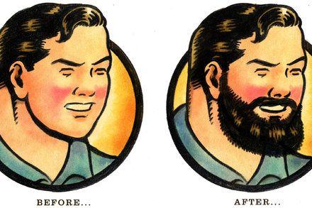 Baby-Faced Men Opt for Beard Transplants