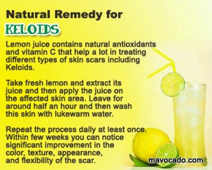 Remedy For Keloids