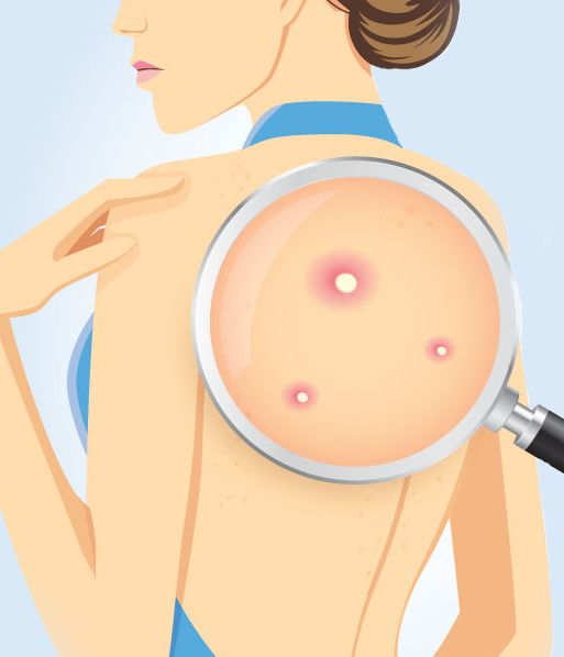 Treating Back Acne: You No Longer Have To Look Over Your Shoulder. There are some very basic things you can do to treat bacne with homemade solutions that will dry out the area, reduce inflammation and fight bacteria.