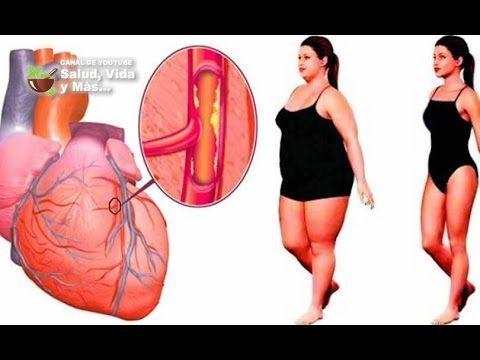 Poderosa bebida destapa tus arterias y te protege contra las enfermedade...