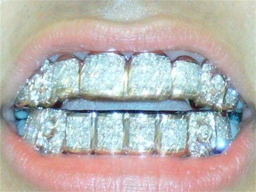 Diamond teeth....wow....just wow