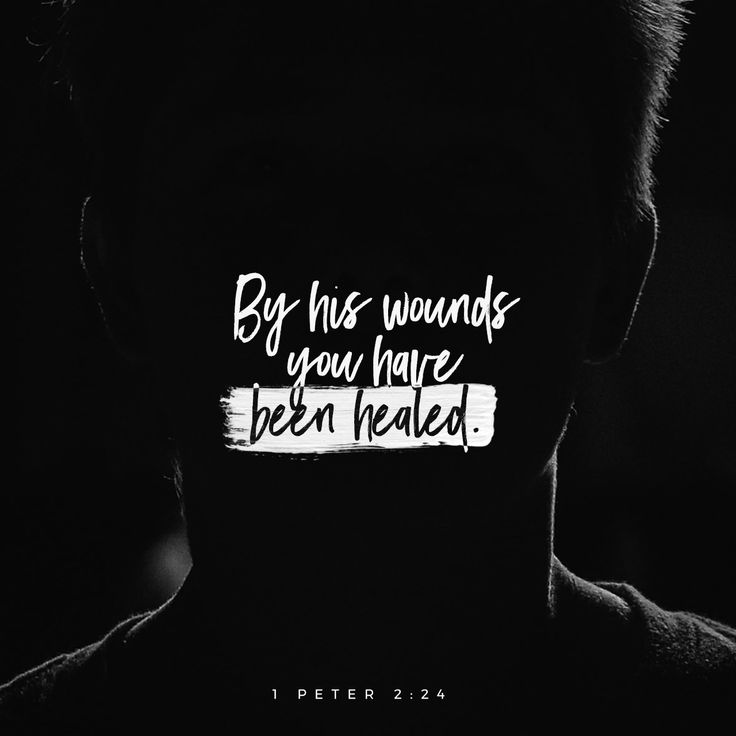 """He himself bore our sins"" in his body on the cross, so that we might die to sins and live for righteousness; ""by his wounds you have been healed."" ‭‭1 Peter‬ ‭2:24‬ ‭NIV11‬‬"