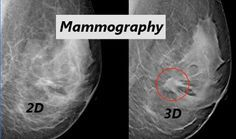 """3D Mammography: The future standard of care for breast cancer. Learn more about the promise of this new technology for breast cancer screening and detection -- especially in women with dense breasts. The latest from """"Women's Wellness"""" blogger Dr. Elizabeth Chabner Thompson."""