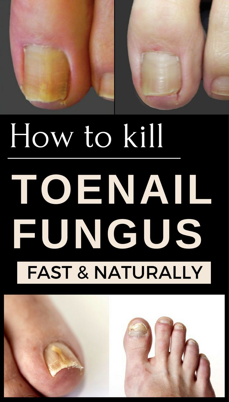 How To Cure A Flu Fast Naturally