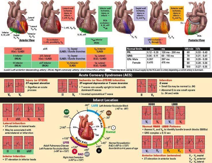 Relationship Of 12 Lead Ecg To Coronary Artery Anatomy ...