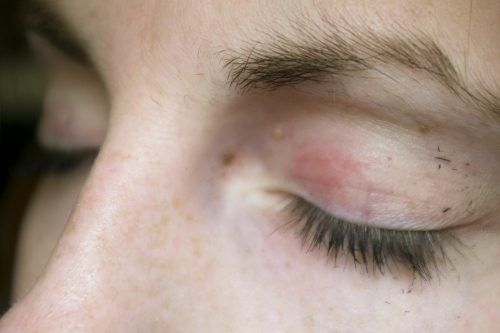 How to treat Shingles rash in eyes, early signs, risks and antiviral medications available for treatment. See pictures and videos of shingles eye infection.
